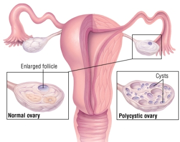 normal-ovary-vs-polycystic-ovary